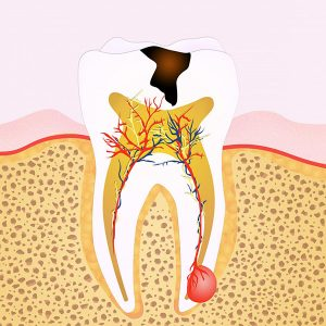 Top 4 Signs You May Need Root Canal Treatment glen waverley dentist