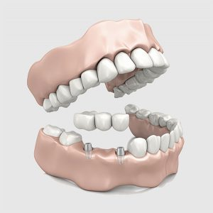 Dental Bridges | EK Dental Surgery - Dentist Glen Waverley