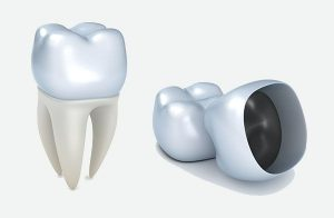 Dental Crowns | EK Dental Surgery - Dentist Glen Waverley