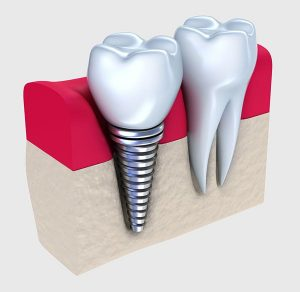 Dental Implant | EK Dental Surgery - Dentist Glen Waverley