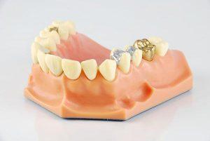 Inlays or Onlays | EK Dental Surgery - Dentist Glen Waverley