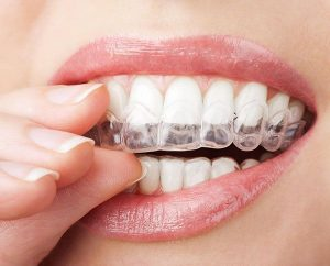 Invisalign | EK Dental Surgery - Dentist Glen Waverley