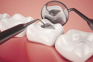 Silver Fillings - Amalgam | EK Dental Surgery - Dentist Glen Waverley