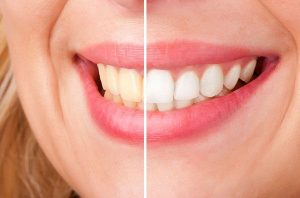 Teeth Whitening | EK Dental Surgery - Dentist Glen Waverley