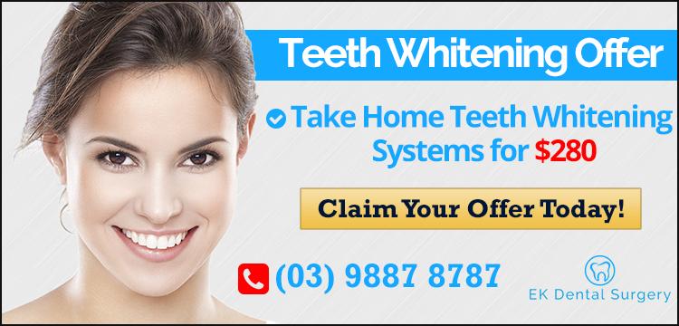 Teeth Whitening Offer Banner | Dentist Glen Waverley