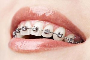 Conventional Braces | EK Dental Surgery - Dentist Glen Waverley