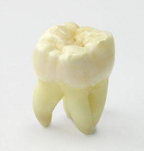 Wisdom Tooth Removal | EK Dental Surgery - Dentist Glen Waverley