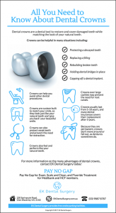 What You Should Know About Dental Crowns