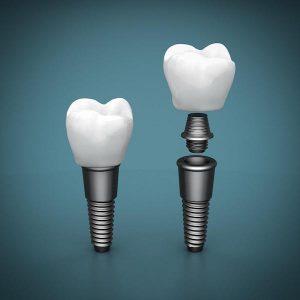 Ease, Comfort, Appearance The Dental Implant Advantage