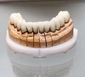 What is the Lifespan of a Dental Crown?