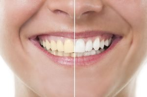 Got Yellow Teeth? Discover How to Whiten Them Fast
