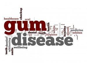 EK Dental Surgery Gum | Disease Causes Care And Cure | Dentist Glen Waverley