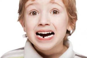 Knocked Out Tooth Emergency | Dentist Glen Waverley