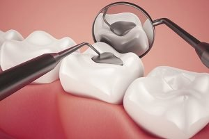 Lost Fillings, Crowns, Inlays, And Onlays   Dentist Glen Waverley