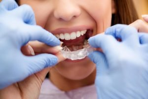 How Orthodontics can transform your Smile