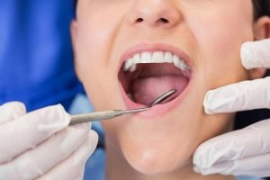 Preventive Dentistry Glen Waverley