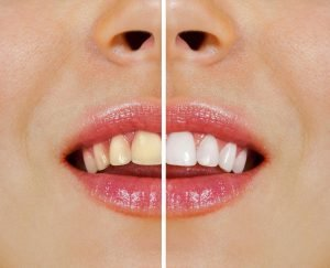 Glen Waverley Dentist Tips Over-the-Counter Teeth Whitening vs Professional At-Home Whitening