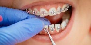braces-care-glen-waverley