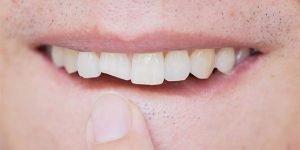 broken-tooth-glen-waverley