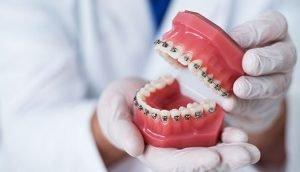 how-to-clean-your-braces-glen-waverley